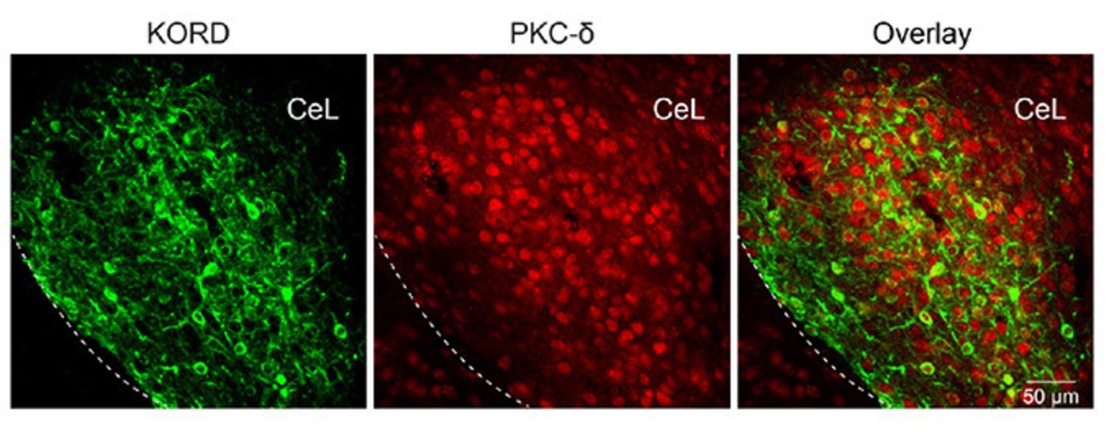 Cold_Spring_Harbor_Laboratory_PKC_cells.jpg